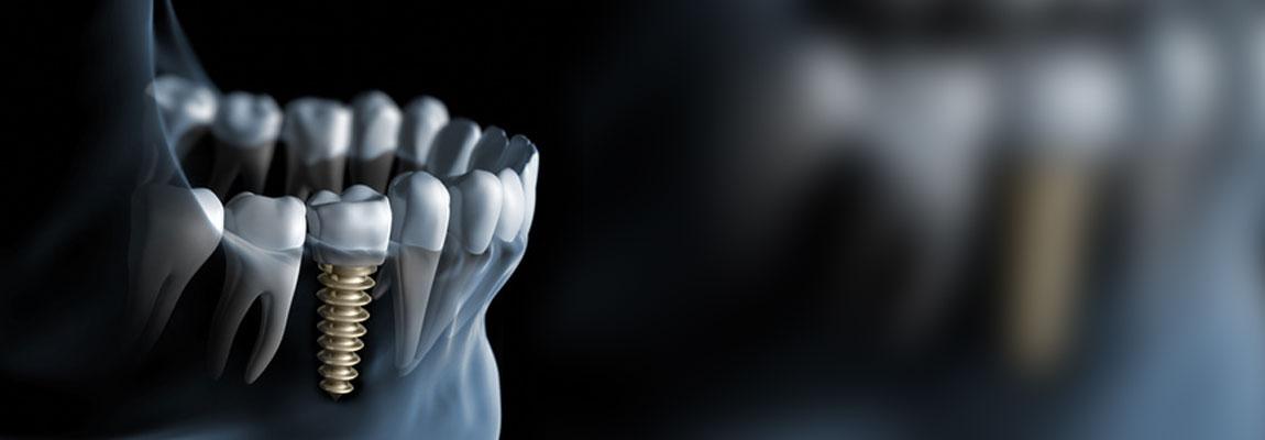 Implantate Zahnarzt Düsseldorf Flingern